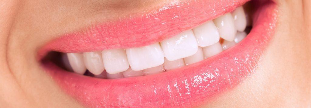 Zahnarzt Trudering Bleaching nacher