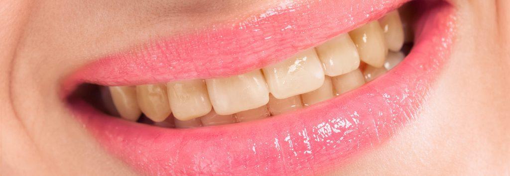 Zahnarzt Trudering Bleaching vorher