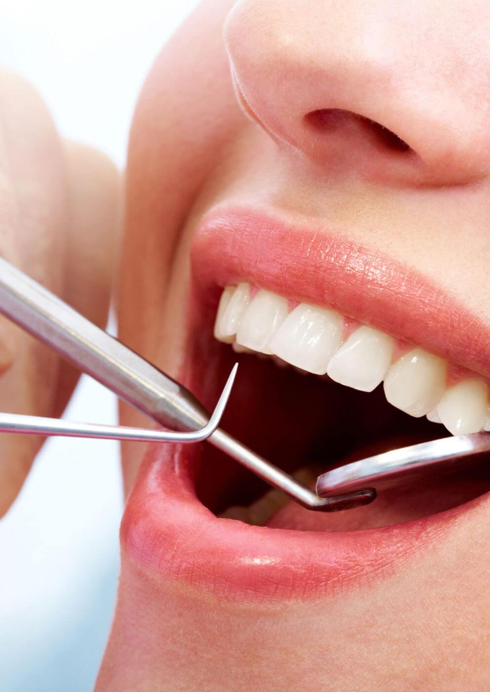 Zahnärztliche Vorsorge